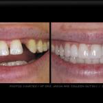 teeth_img