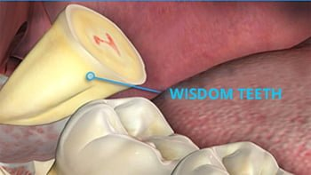Wisdom Teeth and Other Surgical Procedures